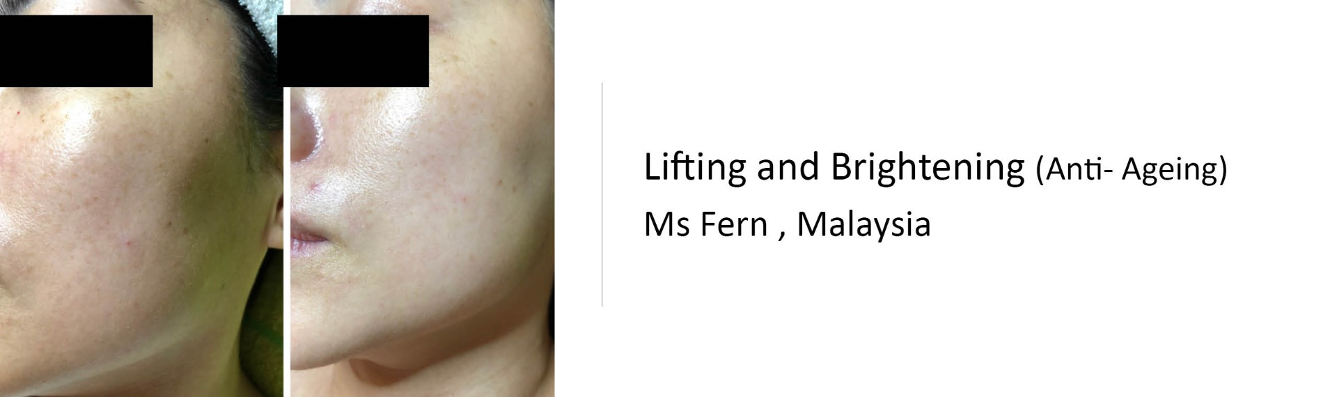 11 Lifting and Brightening (Anti- Ageing)